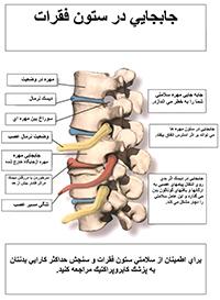 درمان ستون فقرات کایروپراکتیک